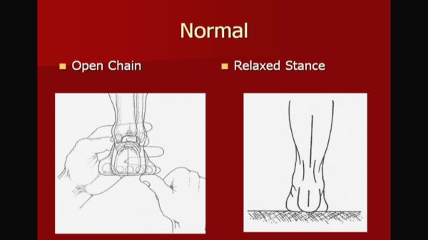 Wilk PTI Online: Abnormal Foot Mechanics - Impact on Gait-242
