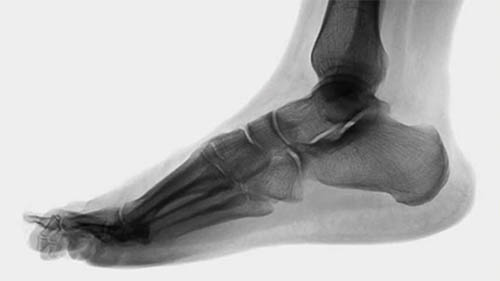 Wilk PTI Online: Anatomy of the Foot and Ankle Complex-0